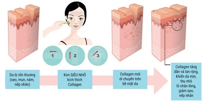 công nghệ lăn kim tế bào gốc