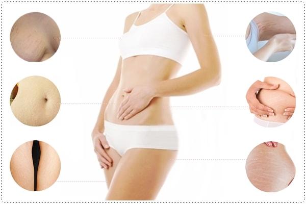 điều trị rạn da bằng prp