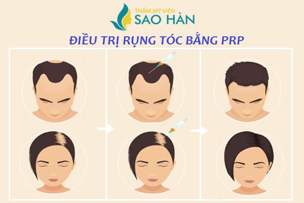 Điều trị rụng tóc bằng PRP (Huyết tương giàu tiểu cầu) Dieu-tri-rung-toc-bang-prp-1