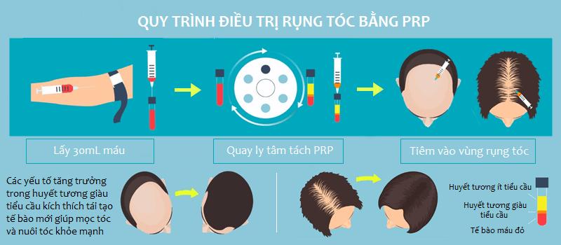 điều trị rụng tóc bằng PRP