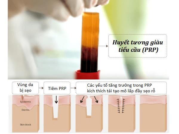 Điều trị sẹo rỗ bằng PRP (Huyết tương giàu tiểu cầu)