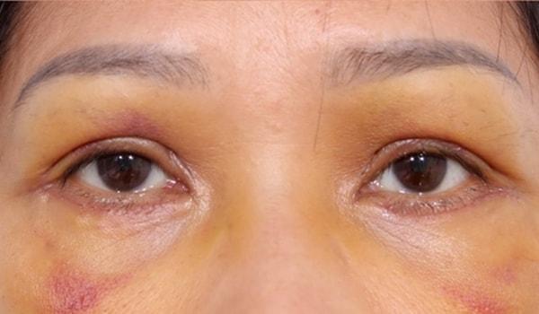 biến chứng sau cắt mí mắt